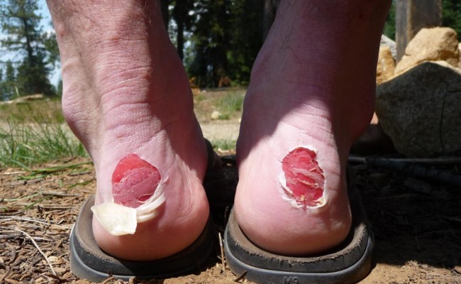 A Backpackers Worst Enemy: The Ten Ways You Can Prevent Those Dreaded Blisters